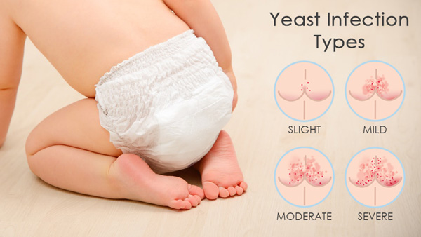 Yeast Infection types